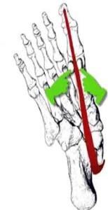 Foot Fig 11