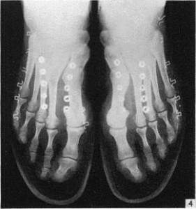 Foot Fig 20