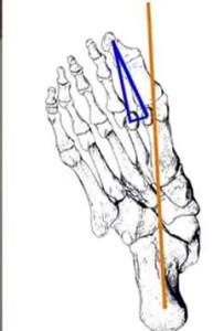 Foot Fig 12