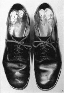 Foot Fig 21